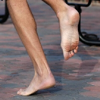 Barefoot running injuries are hobbling but preventable