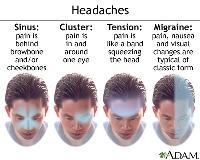 Knowing how to get rid of tension headache pain can save your day