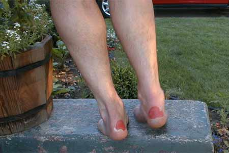Try NOT to get them, but if you do here's the best way to take care of blisters